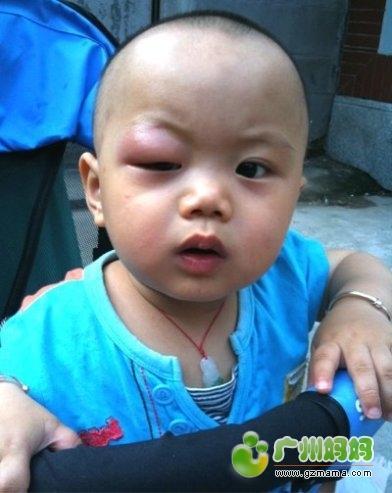 宝宝眼皮被毒蚊子叮了,肿得眼睛都睁不开了!求